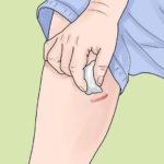 Свежие шрамы - противопоказание к депиляции воском