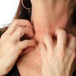 Риск проявления аллергии