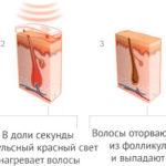 Принцип и схема действия эпиляции диодным лазером