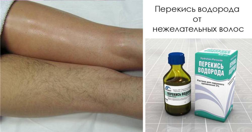 Рецепт от грибка на ногах с перекисью