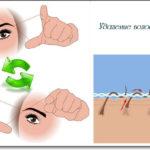 Схема удаления волос ниткой