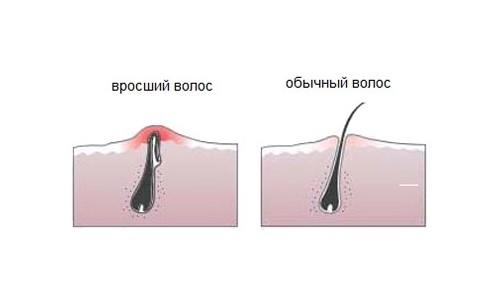 Проблема вросших волосков