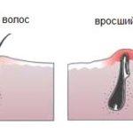 Врастание волос - следствие депиляции нитью