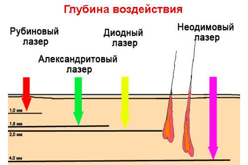 сколько вспышек лазера нужно для зоны бикини
