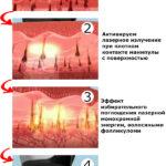 Этапы лазерной эпиляции