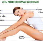 Зоны лазерной эпиляции для женщин