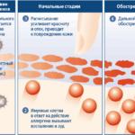 Аллергический дерматит - следствие лазерной эпиляции