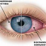 Конъюнктивит - следствие лазерной эпиляции