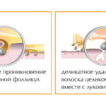 Процедура сахарной эпиляции. процедура шугаринга
