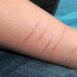 Повреждение кожного покрова - противопоказание к эпиляции